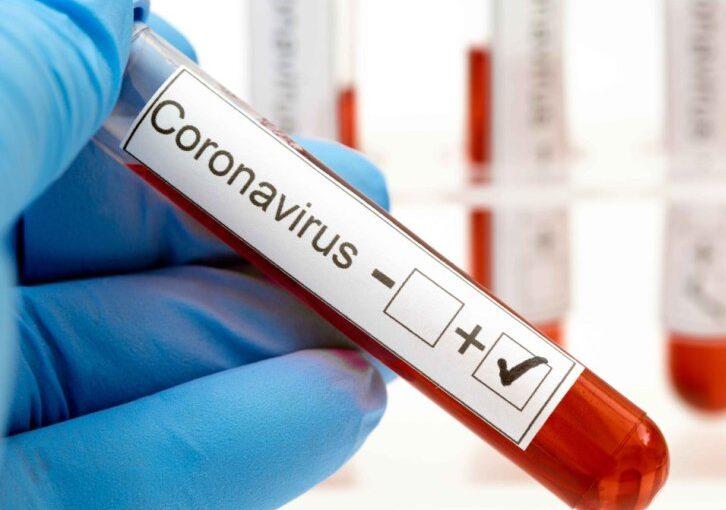 CORONAVIRUS EN ARRECIFES: UN NUEVO POSITIVO Y 29 DESCARTADOS